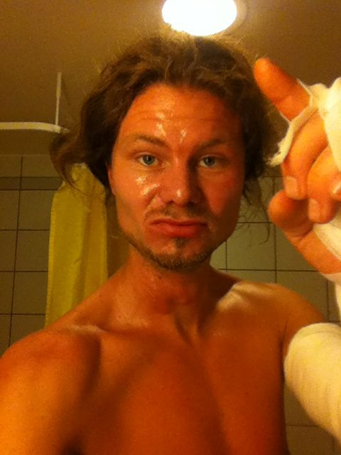brännskada-finger-dålig-frisyr